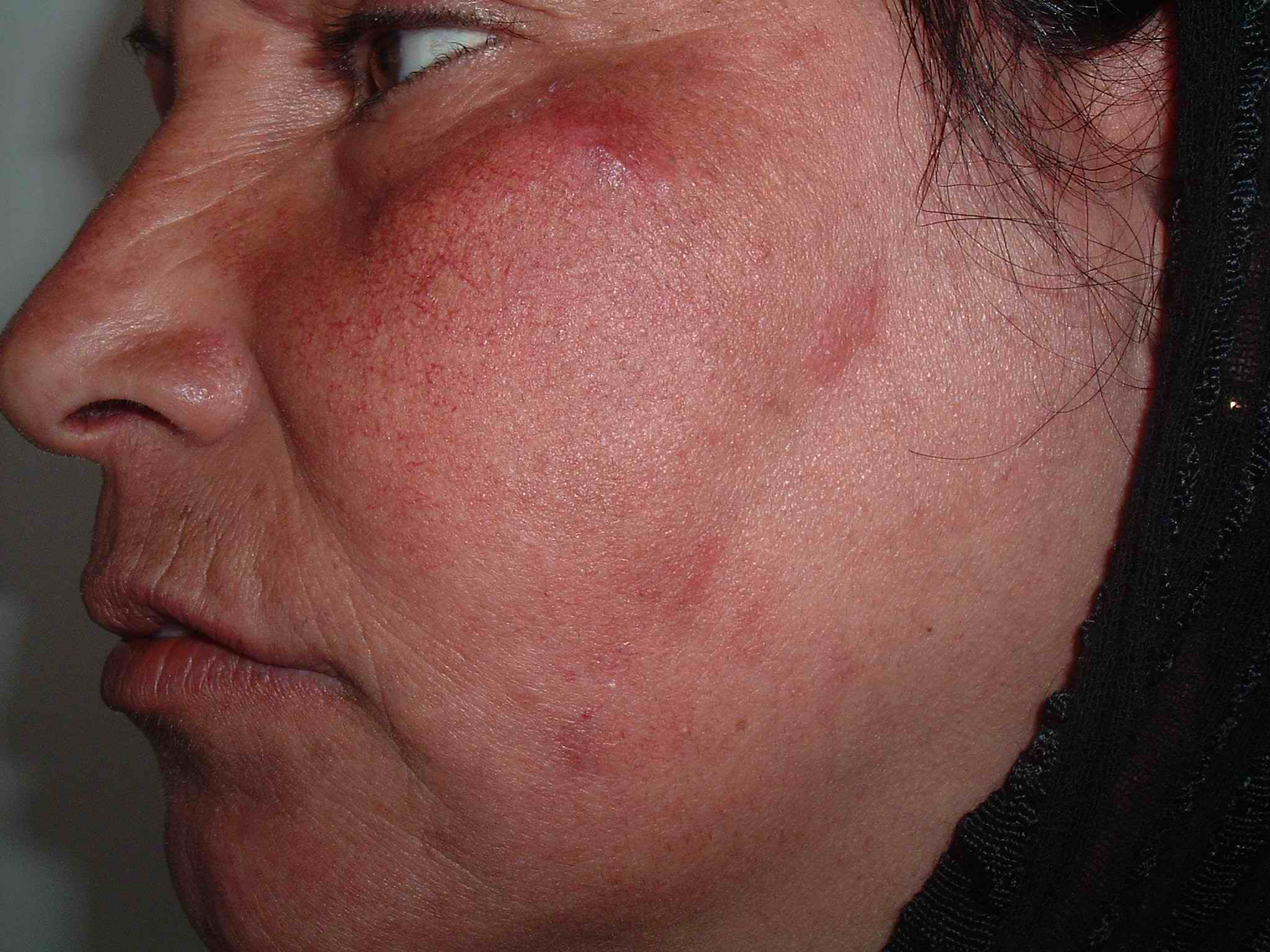 Red scaly rash - American Academy of Dermatology - aad.org