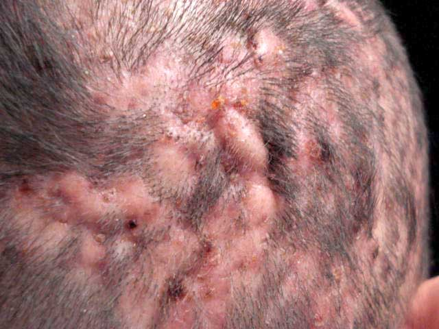 Scalp psoriasis vs. seborrheic dermatitis: What's the ...